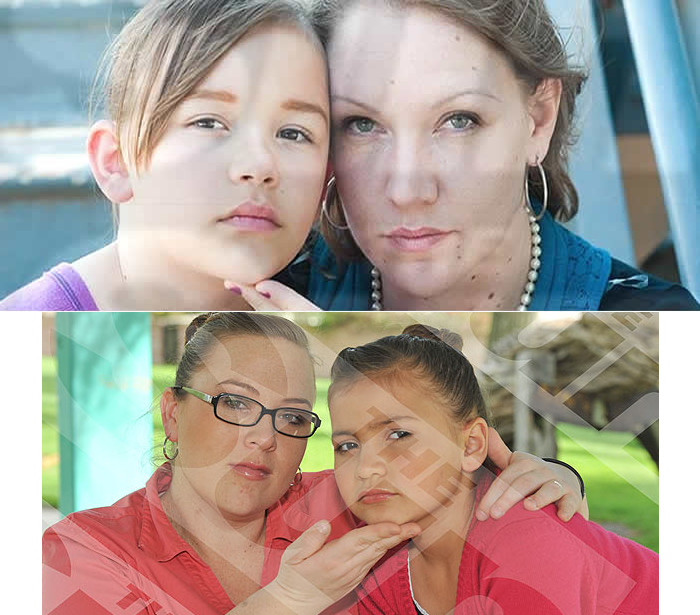 As Crianças Que Recebem Aplicação De Botox Das Próprias Mães 01