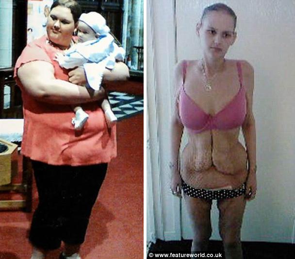 Garota Que Já Foi Considerada A Mais Gorda Da Grã-Bretanha Agora Sofre De Anorexia