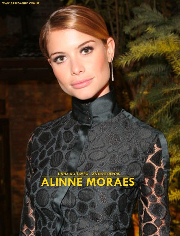 Antes e depois – Alinne Moraes
