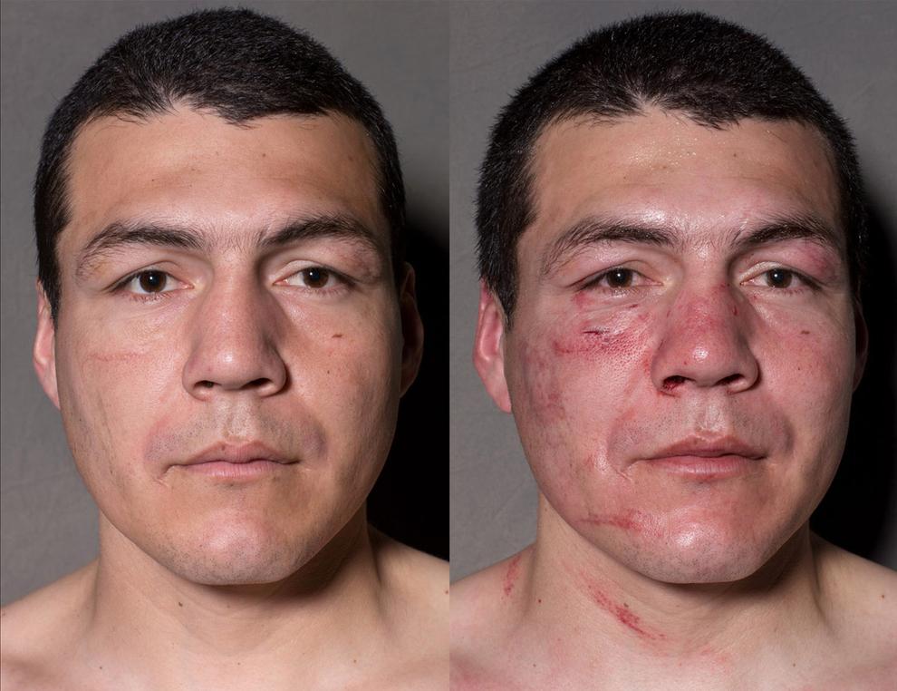 boxeadorantesdepois06