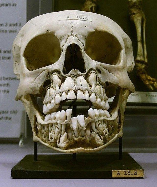 Você Sabe Onde Estão Os Dentes Permanentes, Enquanto Usamos Os De Leite
