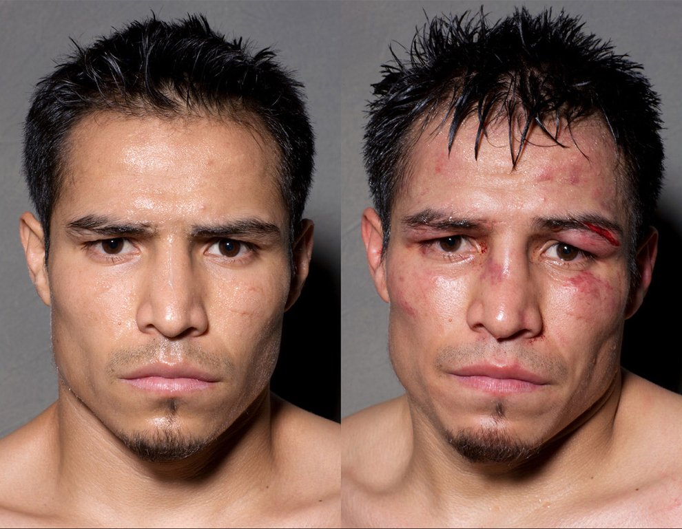 boxeadorantesdepois01