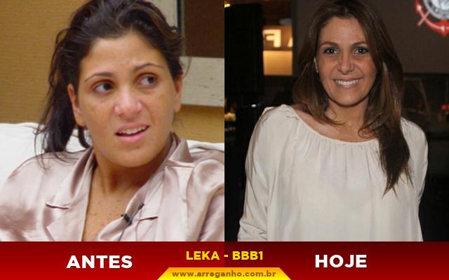 Top 10: Confira o antes e depois dos ex-BBBs